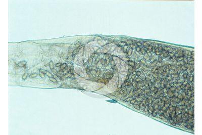 Enterobius vermicularis. Pinworm. Enterobiasis. 125X