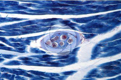 Trichinella spiralis. Trichina. Trichinellosi. Sezione longitudinale. 125X