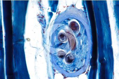 Trichinella spiralis. Trichina. Trichinellosi. Sezione longitudinale. 250X