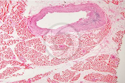 Trichinella spiralis. Trichinellosis. Longitudinal section. 64X