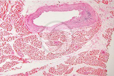 Trichinella spiralis. Trichina. Trichinellosi. Sezione longitudinale. 64X