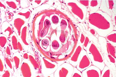 Trichinella spiralis. Trichinellosis. Longitudinal section. 250X