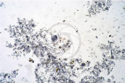 Entamoeba histolytica. Amoebiasis. 125X