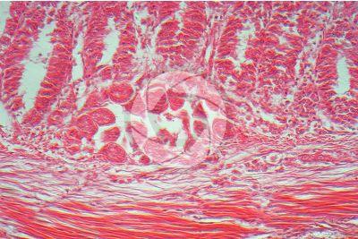 Eimeria stiedae. Coccidiosis. Transverse section. 250X