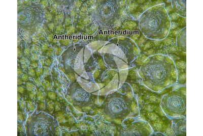 Conocephalum conicum. Great scented liverwort. Antheridiophore. 60X
