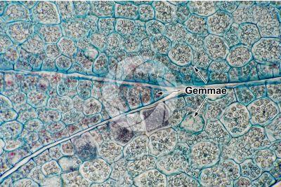 Marchantia polymorpha. Common liverwort. Gemma cup. Transverse section. 500X