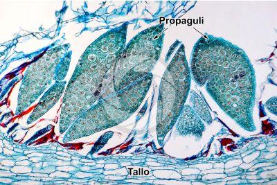 Marchantia polymorpha. Fegatella. Scodelletta propagulifera. Sezione trasversale. 125X