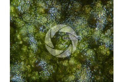 Marchantia polymorpha. Fegatella. Anteridioforo. 60X