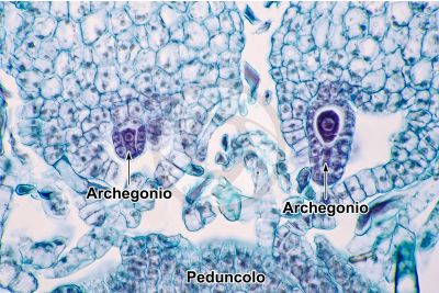 Marchantia polymorpha. Fegatella. Archegonio in stadio iniziale. Sezione longitudinale. 500X