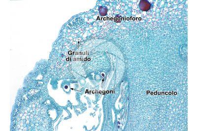 Marchantia polymorpha. Fegatella. Archegonio in stadio intermedio. Sezione longitudinale. 125X