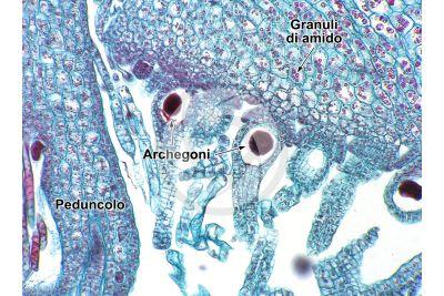 Marchantia polymorpha. Fegatella. Archegonio in stadio intermedio. Sezione longitudinale. 250X