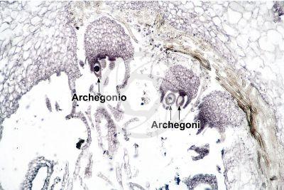 Marchantia polymorpha. Fegatella. Archegonio. Sezione longitudinale. 64X