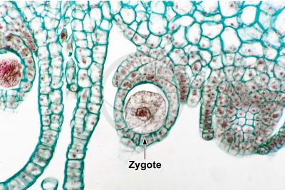 Marchantia polymorpha. Common liverwort. Zygote. Longitudinal section. 500X