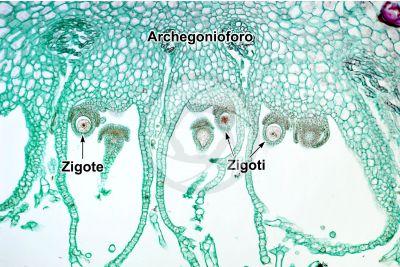 Marchantia polymorpha. Fegatella. Zigote. Sezione longitudinale. 125X