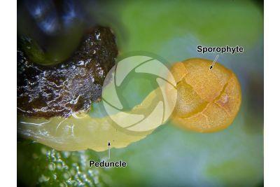 Noteroclada confluens. Sporophyte. 20X