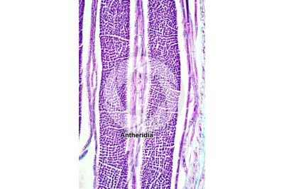 Mnium sp. Antheridium. Longitudinal section. 250X