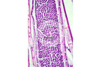 Mnium sp. Anteridio. Sezione longitudinale. 500X