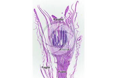Mnium sp. Anteridio. Sezione longitudinale. 32X