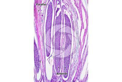 Mnium sp. Anteridio. Sezione longitudinale. 125X