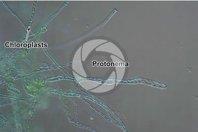 Polytrichum sp. Protonema. 250X