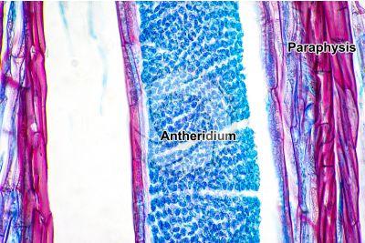 Polytrichum sp. Antheridium. Longitudinal section. 500X