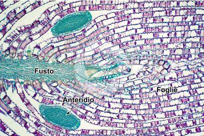 Sphagnum sp. Sfagno. Anteridio. Sezione longitudinale. 125X