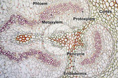 Adiantum sp. Walking fern. Rhizome. Amphiphloic siphonostele. Transverse section. 125X