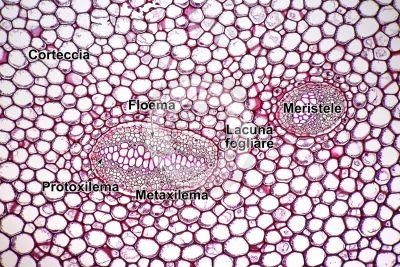 Polypodium sp. Rizoma. Dictiostele. Sezione trasversale. 125X