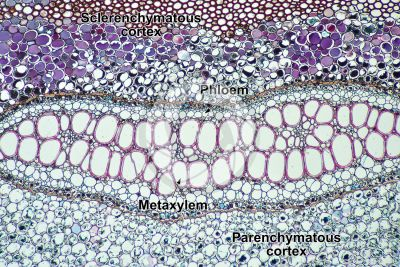 Pteridium sp. Rhizome. Meristele. Transverse section. 64X