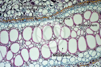 Pteridium sp. Rhizome. Meristele. Transverse section. 125X