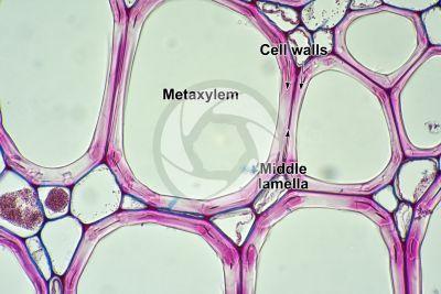 Pteridium sp. Rhizome. Meristele. Transverse section. 500X