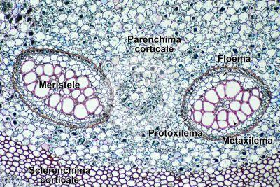Pteridium sp. Rizoma. Dictiostele. Sezione trasversale. 64X