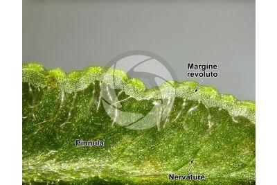 Pteridium aquilinum. Felce aquilina. Foglia. 25X