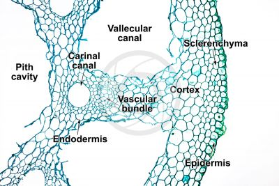 Equisetum intermedium. Rhizome. Transverse section. 125X