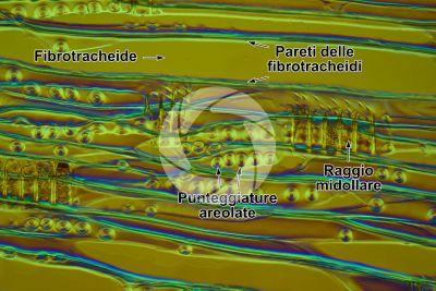 Larix decidua. Larice. Fusto. Sezione longitudinale radiale. Contrasto interferenziale. 250X