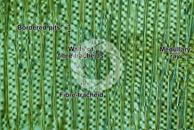 Picea abies. Norway spruce. Stem. Radial longitudinal section. Differential interference contrast. 250X