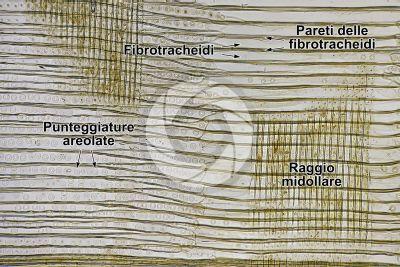 Picea abies. Abete rosso. Fusto. Sezione longitudinale radiale. 125X
