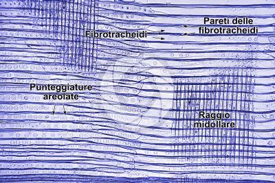 Picea abies. Abete rosso. Fusto. Sezione longitudinale radiale. Colorazione di contrasto. 125X
