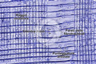 Picea abies. Abete rosso. Fusto. Sezione longitudinale radiale. Colorazione di contrasto. 250X