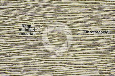 Picea abies. Abete rosso. Fusto. Sezione longitudinale tangenziale. 64X