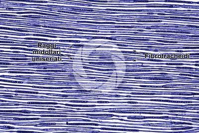 Picea abies. Abete rosso. Fusto. Sezione longitudinale tangenziale. Colorazione di contrasto. 64X