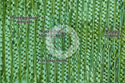 Picea abies. Abete rosso. Fusto. Sezione longitudinale radiale. Contrasto interferenziale. 250X