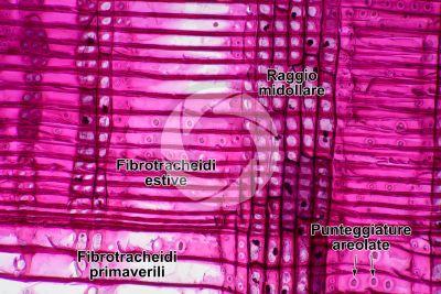 Pinus sp. Pino. Fusto. Sezione longitudinale radiale. 250X