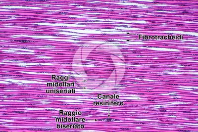 Pinus sp. Pino. Fusto. Sezione longitudinale tangenziale. 64X