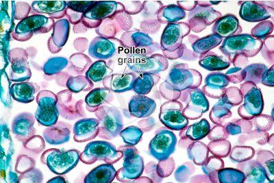 Pinus sp. Pollen. 200X