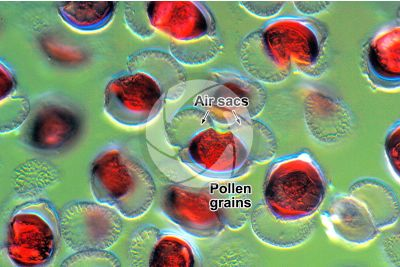 Pinus sp. Pollen. Differential interference contrast. 500X