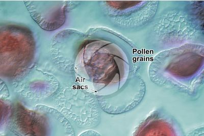 Pinus sp. Pollen. Differential interference contrast. 1000X