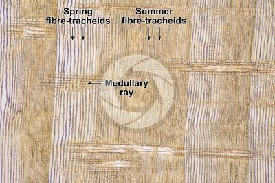 Pinus sylvestris. Scots pine. Stem. Radial longitudinal section. 64X