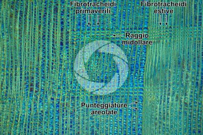 Taxus baccata. Tasso. Fusto. Sezione longitudinale radiale. Contrasto interferenziale. 125X