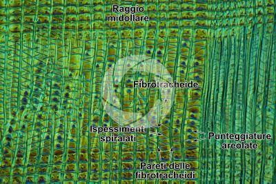 Taxus baccata. Tasso. Fusto. Sezione longitudinale radiale. Contrasto interferenziale. 250X